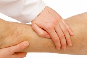 Image-for-Swollen-feet-article-930x300